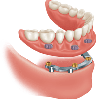 Bar Attached Denture Diagram