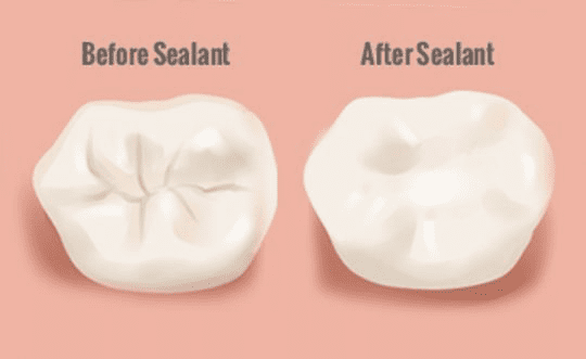 Dental Sealant Before and After Diagram