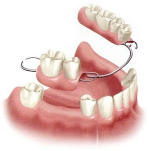 Partial Denture Diagram